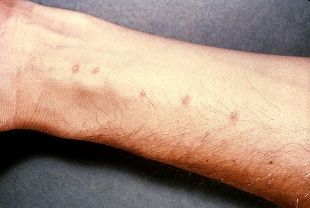 640px-Schistosomiasis_itch (1)