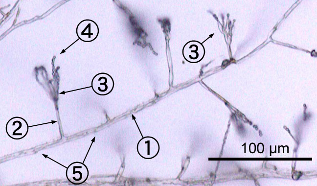 The threads and hyphae that make up penicillin. An environmental isolate of Penicillium hypha conidiophore phialide conidia septavia Wikipedia
